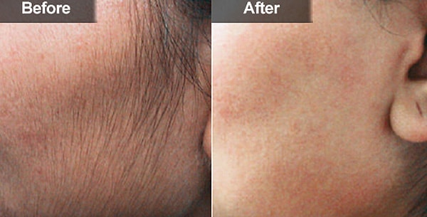 Лазерная эпиляция волос на лице: подготовка и особенности 1