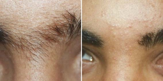 Лазерная эпиляция волос на лице: подготовка и особенности 2