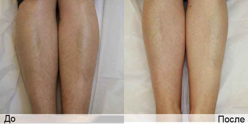 Лазерная эпиляция волос на лице: подготовка и особенности 3