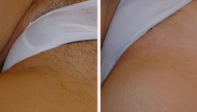 Лазерная эпиляция волос на лице: подготовка и особенности 4