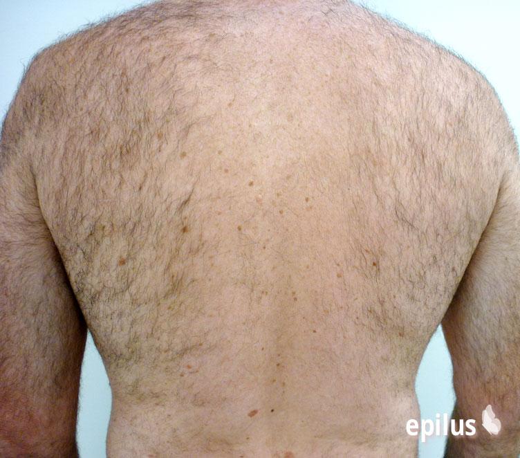 Депиляция спины: 5 безболезненных способов 1-2