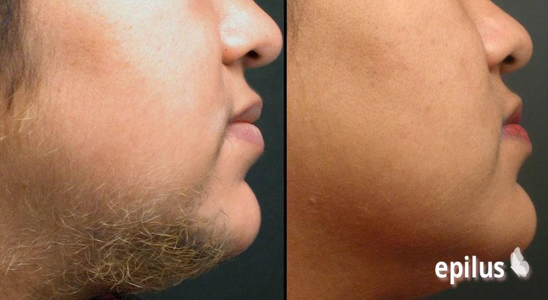 Удаление волос перекисью водорода: простой и одновременно эффективный метод 1-3-1