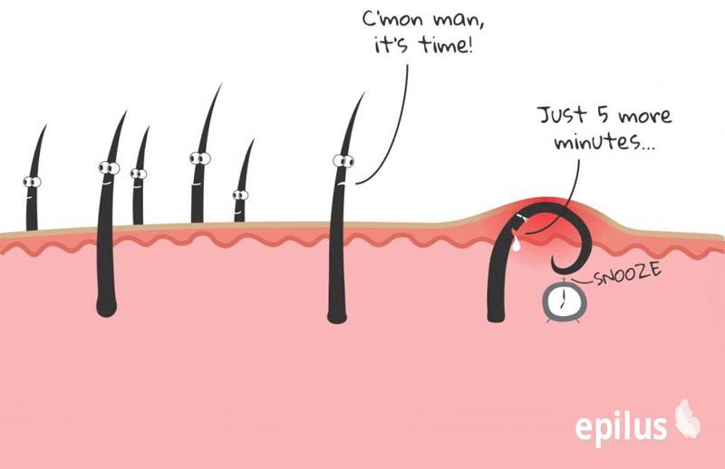 Как удалить вросший волос: избавляемся от нежелательных последствий после депиляции 12-5