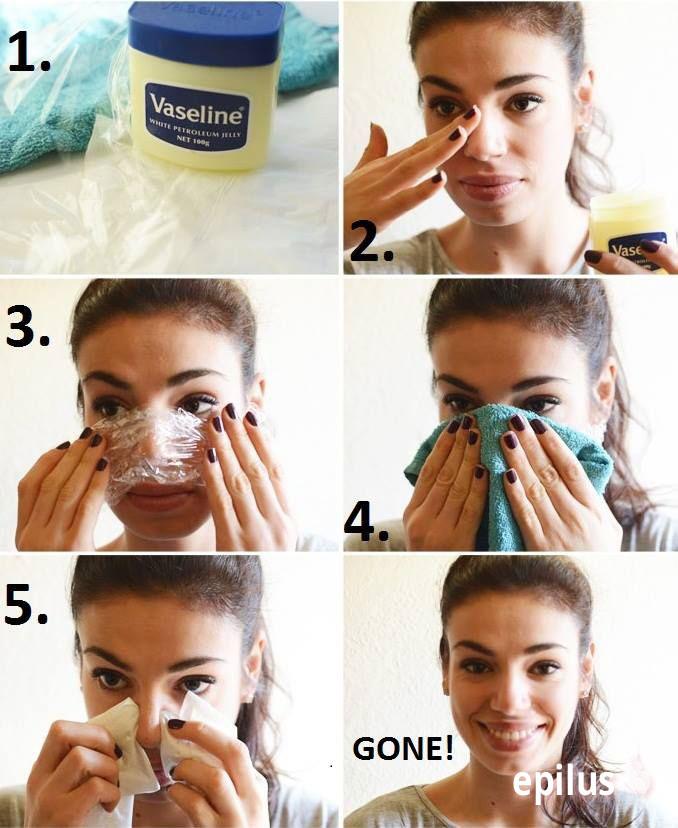 Как избавиться от волос в носу безопасно и без боли 8-4-1