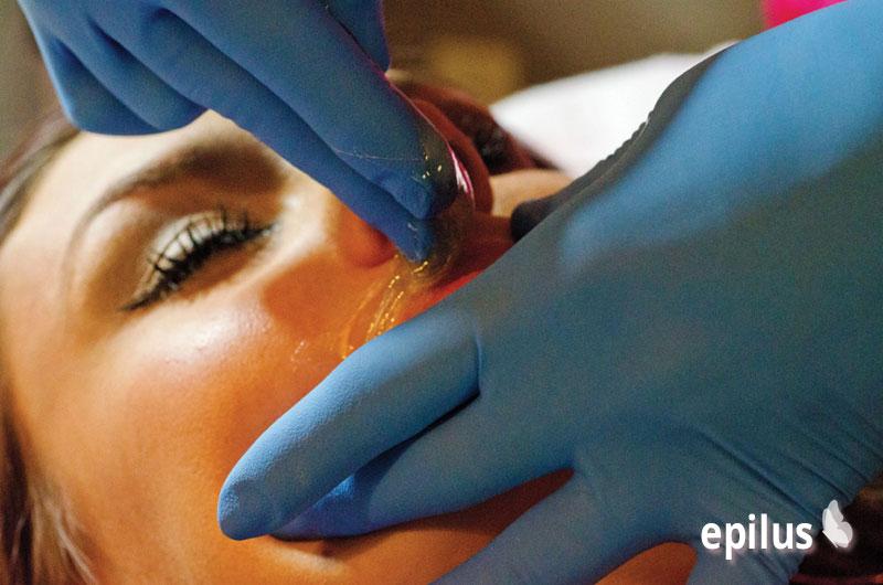 Шугаринг над губой или как избавиться от косметического дефекта на лице 17-2