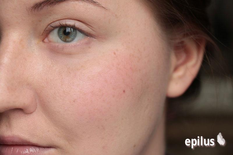 Шугаринг над губой или как избавиться от косметического дефекта на лице 17-5